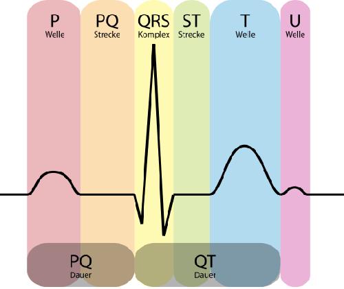 Quelque petits problème cardiaques : angine de poitrine stable ou angor d'effort